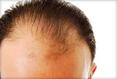 Hair Loss and Stem Cell Therapy